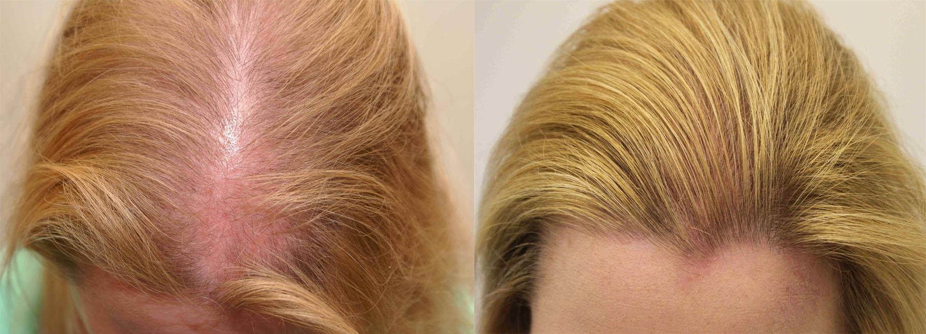Редеющие волосы у женщин лечение