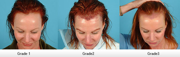 hair-loss-grade-women
