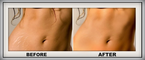 How_to_remove_stretch_marks_before_after1.jpg
