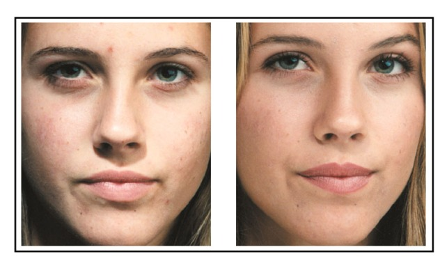 acne-treatment-dermatologist-350.jpg