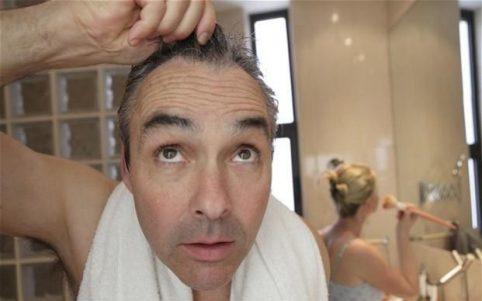 baldness_2174368b-large_trans++qVzuuqpFlyLIwiB6NTmJwZwVSIA7rSIkPn18jgFKEo0