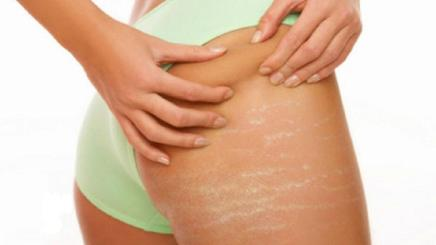 get-rid-of-stretch-marks-2