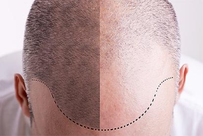 hair-transplant-3 (1)